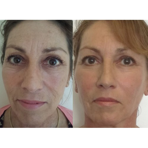 Кейс Meso Botox Lifting image 3