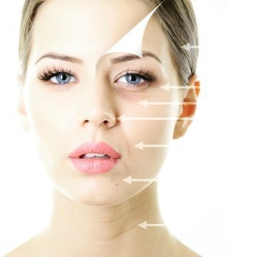 Кейс Meso Botox Lifting image 4