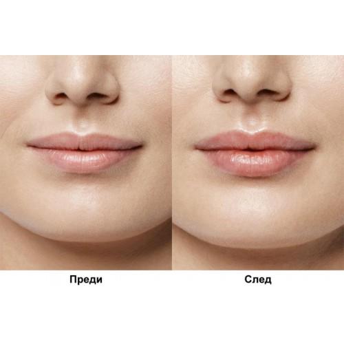 Курс уголемяване на устни