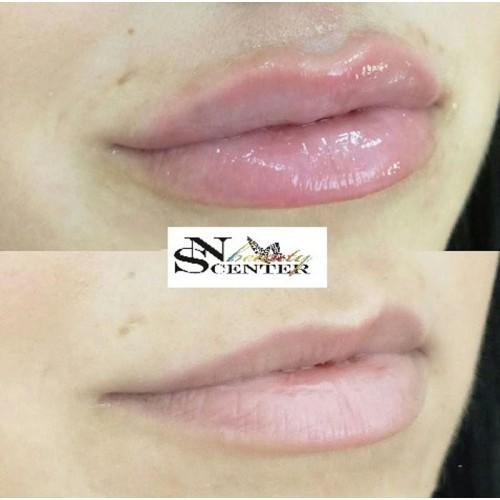 Курс уголемяване на устни image 3