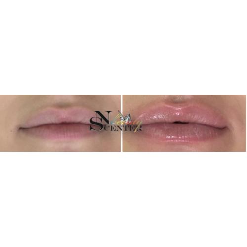 Курс уголемяване на устни image 4