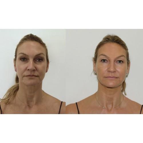 Meso Botox Lifting процедура image 3